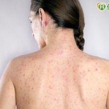 日爆發德國麻疹疫情 疾管署升級旅遊警示