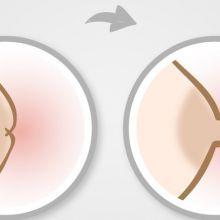 當乳頭平坦及凹陷時,怎麼做才能順利哺乳呢?
