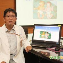 早產女嬰黃疸值難降 換血治療有效改善