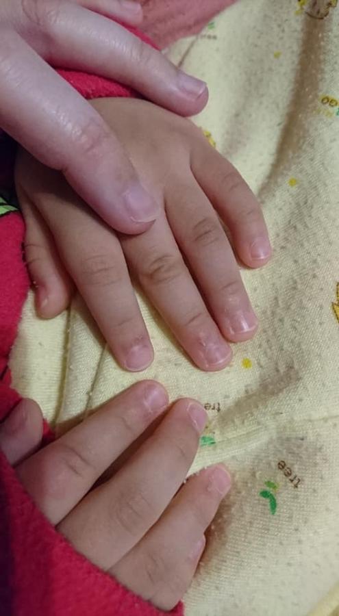 艾惟諾嬰兒燕麥益敏修護霜~改善寶寶手腳乾癢危肌