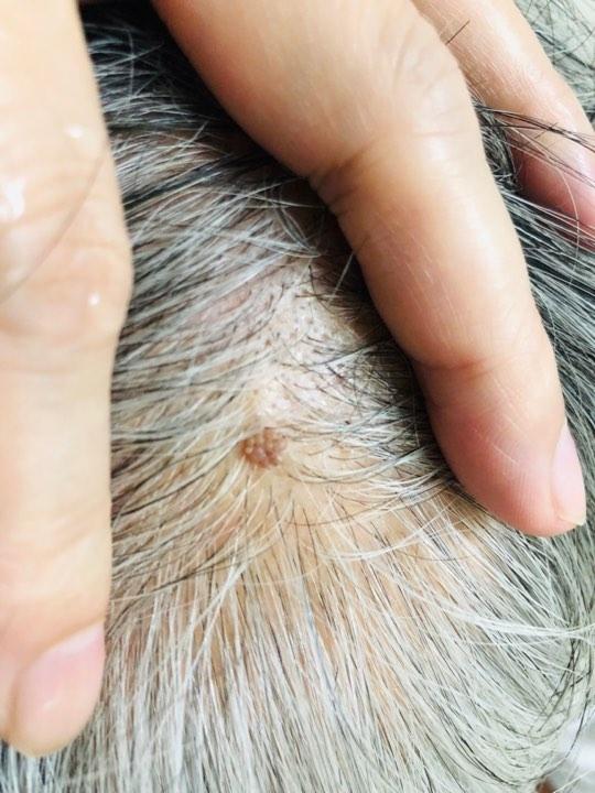 尋常疣病毒是接觸染感,頭皮部位如接觸到病毒也會感染長出來