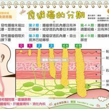 看圖搞懂食道癌分期差異