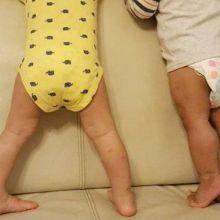 孩子習慣踮腳 小心是長短腳造成