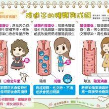 三種陰道炎 成因症狀各不同