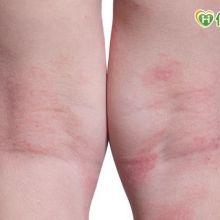 長紅疹+關節疼痛 恐是過敏性紫斑症惹禍