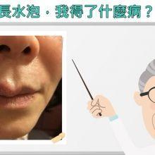 嘴唇反覆長水泡,我得了什麼病?