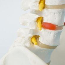 媽媽世代容易罹患?「椎間盤突出」的自我檢測重點☆