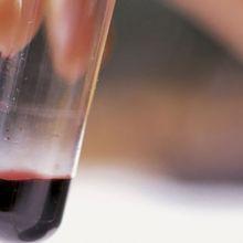 研究:你的血型和罹病風險 大有關係