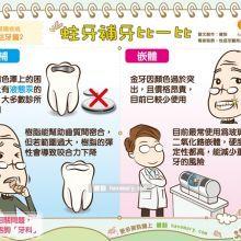 蛀牙蛀出大陷坑 該填補還是嵌體?醫師這樣說