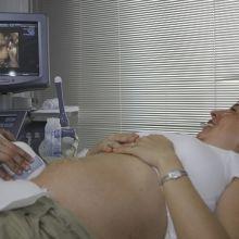 新式的第一孕期染色體異常篩檢面面觀