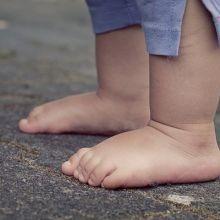寶寶常見的皮膚病(Infant skin problem)