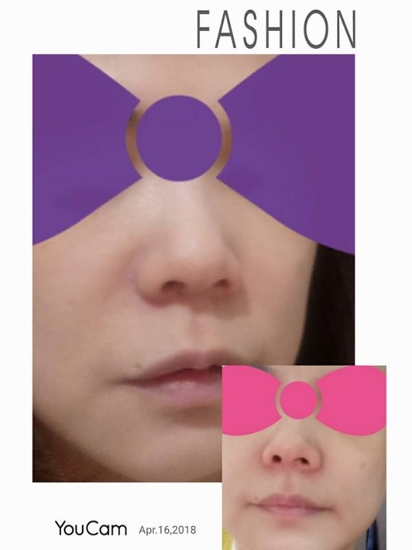 因為跟女兒都是過敏體質😔,所以醫美產品都是購買時的首選.尤其是在這種季節接替時候😤,但是小女的過敏都在私密(害羞處).所以不方便跟大家分享(已經國小三年級)了.只好由媽媽親自上陣囉(羞)廢話不多說,有圖有真相! 紫色蝴蝶結,是使用全面修復霜B5後~在吹乾頭髮前,鼻翼兩側紅癢難耐,(粉紅蝴蝶那張).PS我的頭髮是剛好到肩膀,吹完頭髮(紅癢竟然都消失,也不癢了)全面修復霜B5真的很好用喔😍! #敏弱兒肌膚照護 #敏脆弱肌BB