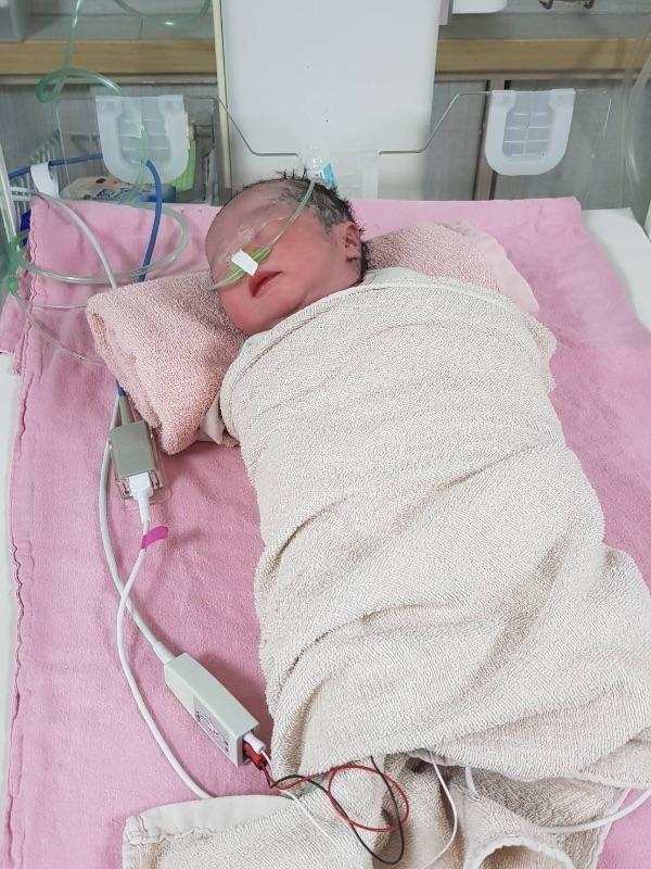 #新生兒報到 107.02.27(35w+3D) 臨時的出血讓你提早一個月出生,嚇到媽媽爸爸了,還好一切平安😍