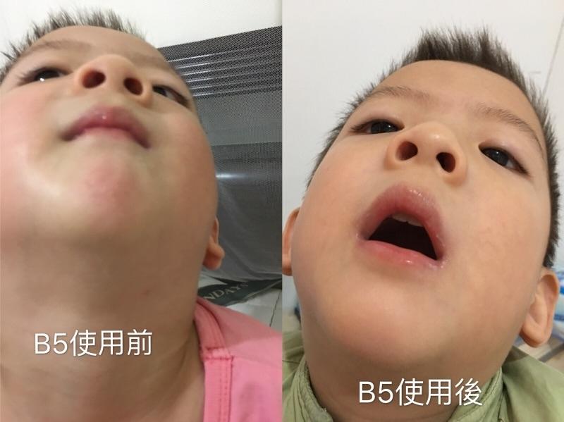 很高興可以試用理膚寶水B5,剛好小孩口水疹,下巴紅紅乾乾的,使用B5後經過ㄧ星期,恢復成小嬰兒滑滑嫩嫩的肌膚。真開心 #敏弱兒肌膚照護、#敏弱肌 BB