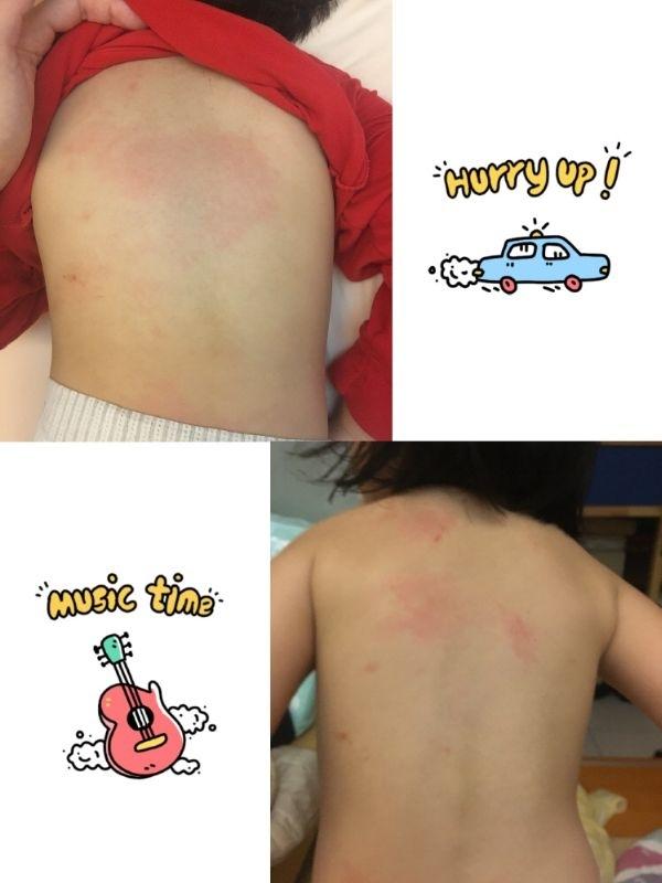 這次拿到試用品的時間剛好是春天換季時分,蚊蟲多,孩子的皮膚也比較敏感。 我們家的哥哥與妹妹本來就有過敏體質,所以只要被蚊蟲咬、天氣太濕悶就容易抓癢抓到破皮。哥哥的手肘與膝蓋也常常皮膚粗糙,是皮膚炎的症狀。 這幾天妹妹汗疹,哥哥被蚊子咬也是皮膚抓得紅通通。 剛好拿到試用品的時候我的皮膚也有點狀況,大腿部分癢到不行,抓到破皮已經很痛了,還是會發癢想抓。平常如果我跟孩子皮膚癢,都會用德國百靈油來鎮定止癢。這款全能修護霜真的滿神奇的,不像百靈油那麼刺激,有微微涼爽的感覺,但卻能馬上止癢。而且更神奇的是塗抹之後,隔天孩子皮膚紅腫的地方就恢復大半。 家中有皮膚敏感的孩子非常好用的一款修護霜,希望能夠拿到正品,讓他在家裡守護我們喔^^ 上圖是使用前,下圖是使用後,哥哥的紅癢一晚就恢復,妹妹一直紅一大片的汗疹,塗抹一個晚上,區域也大幅的縮小了 #敏弱兒肌膚照護、#敏弱肌 BB