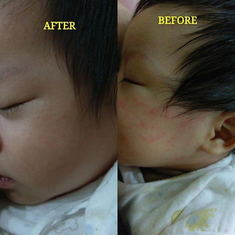 """很開心能得到體驗的機會,本次體驗收到的內容包括""""全面修復霜B5""""與""""理必佳乳液"""",但其實在這次試用之前,我就已經是全面修復霜的愛用者了,那時候還不知道這是拿來擦寶寶屁股用的,因為有一陣子我的臉過敏到不行,嚴重到只敢用清水洗臉,洗完之後什麼都不敢擦,因為不管擦什麼臉都會開始發紅,當時就是全面修復霜救了我的臉,他的質地介於膏與霜之前,摸起來有點厚重,但又不像其他屁屁膏那麼厚稠,所以我都是睡前薄薄擦一層在臉上,或是過敏發作的時候,趕緊塗來急救;持續用了一段時間之後,沒想到臉就恢復正常了,也開始可以用回原本在用的其他保養品了。 現在這隻霜更是""""寶寶用好,媽媽用也好"""",只要寶寶有紅屁屁出現或是其他地方發紅,我也會針對發紅的地方薄塗一層,或是偶爾睡前擦屁屁來預防用(沒辦法,因為這隻霜的價格比起他牌屁屁膏價位也高一些,媽媽也要省一些自己擦臉用XD),它的吸收力超好,所以每次薄擦一層時,下一次打開尿布的時候,就不會再有白白一層在屁屁上,感覺就是藥效有很有效的被寶寶的肌膚吸收囉! 還好寶寶不是金屁屁,所以平常沒有紅屁屁的時候,我還是會用比較便宜的他牌屁屁膏不心疼的厚塗,但是就使用結果來說,這效果真的很適合敏感肌的寶寶每天使用唷! #敏弱兒肌膚照護 #敏弱肌BB"""